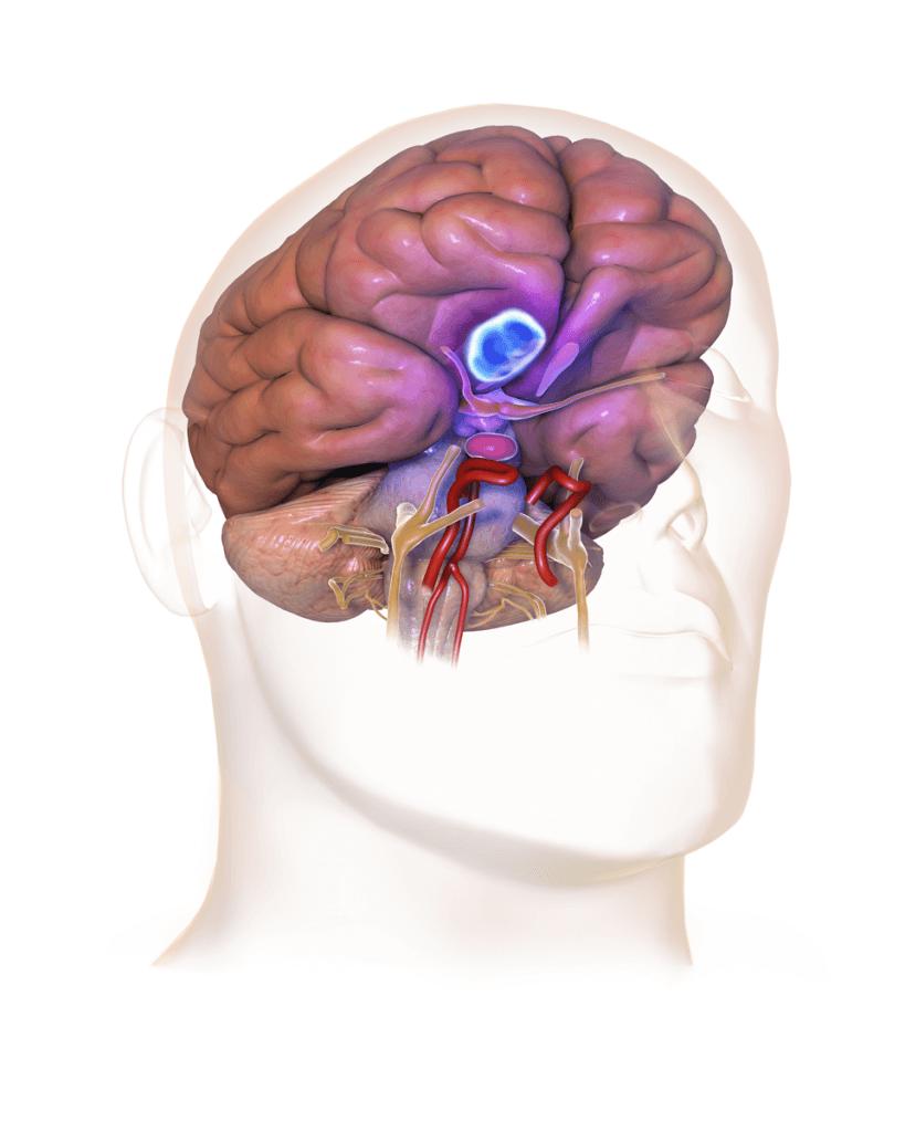"""脑膜瘤——最常见的脑肿瘤""""/> </div><div class="""