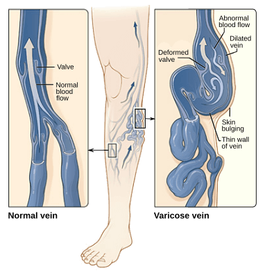 A Guide to Varicose Veins